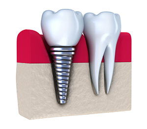 Dental implants in North Royalton, OH