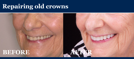 repairing old crowns - before and after