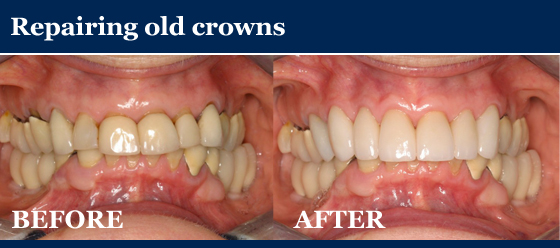 repairing old crowns