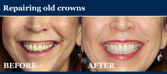 before and after picture - repairing old crowns