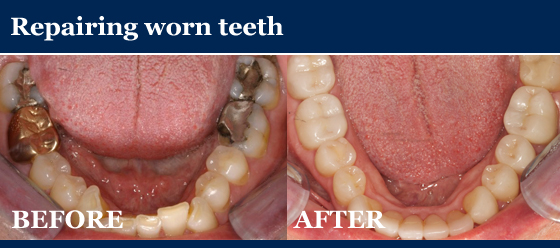 repairing worn teeth